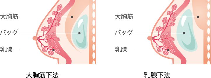 大胸筋下法・乳腺下法