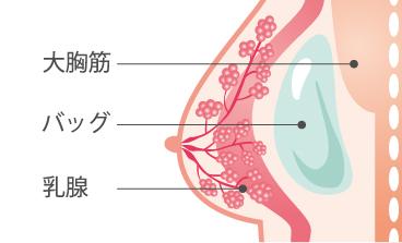 胸が張らない 妊娠可能性