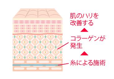 コラーゲンが肌のハリを改善