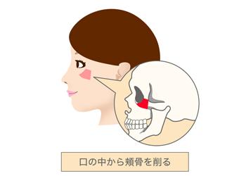 口の中から頬骨を削る