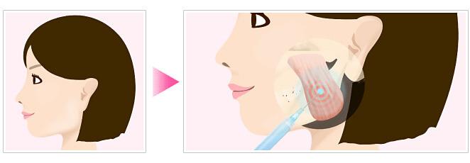 咬筋が発達している場合のエラ張り