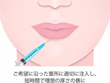 唇へヒアルロン酸注入