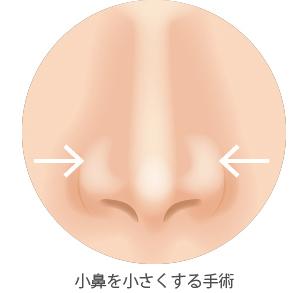 小鼻を小さく