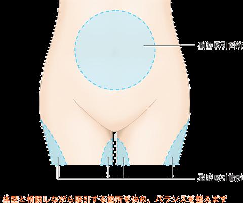 脂肪吸引箇所