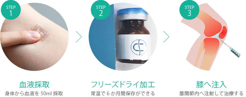 脂肪幹細胞療法