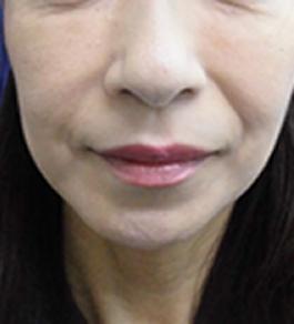 清水三嘉医師による目の下のクマのエイジングケア 術後