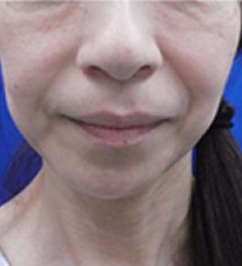 清水三嘉医師による目の下のクマのエイジングケア 術前