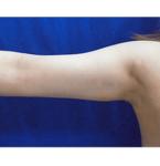 清水三嘉医師による二の腕・二の腕付け根の脂肪の吸引 術後