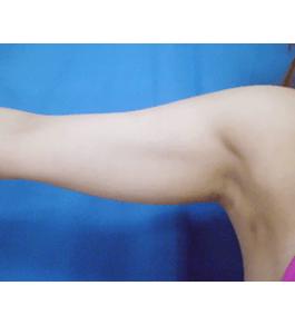 清水三嘉医師による二の腕・二の腕付け根の脂肪の吸引 術前