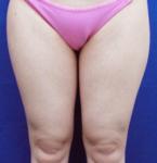 清水三嘉医師による下半身の脂肪の吸引 術前