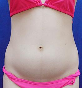 清水三嘉医師によるお腹の脂肪の吸引 術前