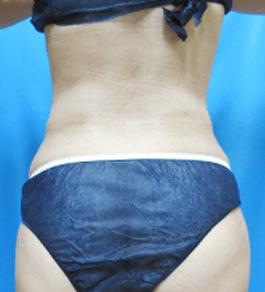 清水三嘉医師によるお腹の脂肪の吸引 術後