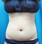 柴田智一医師によるお腹の脂肪の吸引 術後
