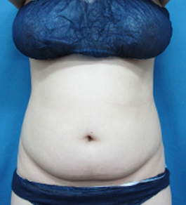 柴田智一医師によるお腹の脂肪の吸引 術前