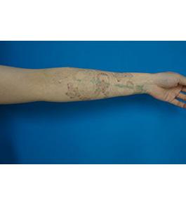 柴田智一医師による腕のタトゥー除去 術前