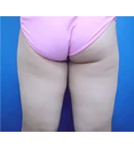 脚(足)の脂肪の吸引 術前