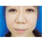 清水三嘉医師によるお顔のエイジングケア 術後