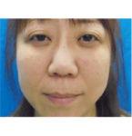 清水三嘉医師によるお顔のエイジングケア 術前