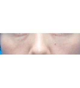 柴田智一医師による目の下くま・たるみ治療 術後