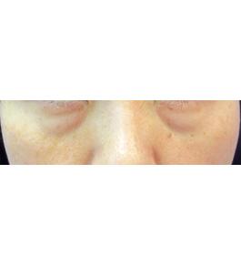 柴田智一医師による目の下くま・たるみ治療 術前