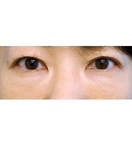 目の下のくま・たるみ治療 術後