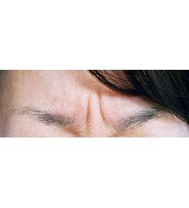 目の下のくま・たるみ治療 術前