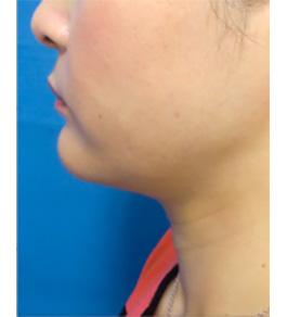 お顔の脂肪の吸引 術後
