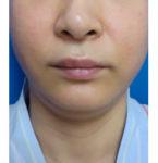 お顔の脂肪の吸引 術前