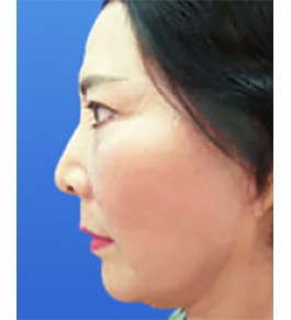 お顔のリフトアップ 術後