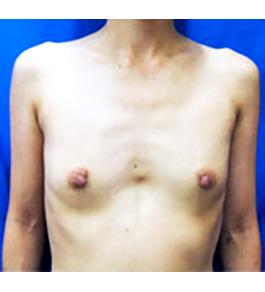 脂肪注入による豊胸 術前