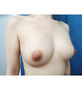 脂肪注入による豊胸 術後