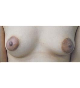 乳頭縮小・乳輪縮小 術前