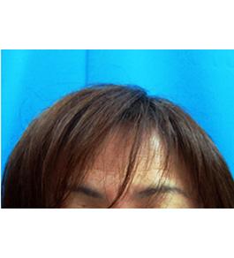 女性の薄毛 術後