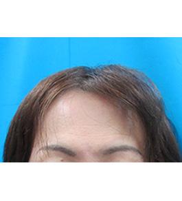 女性の薄毛 術前