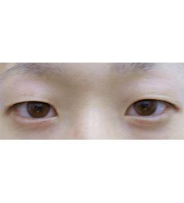 眼の美容整形 術前