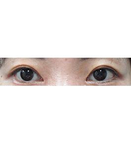 眼の美容整形 術後