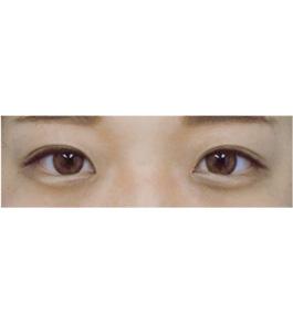清水三嘉医師による眼の美容整形 術後