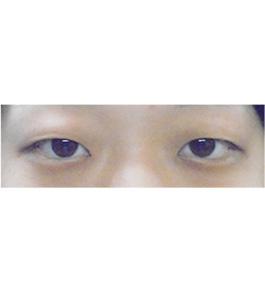 清水三嘉医師による眼の美容整形 術前