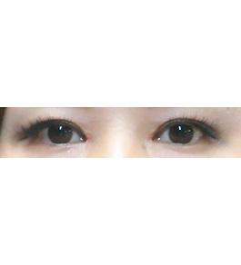 柴田智一医師による眼の美容整形 術後