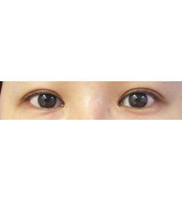 柴田智一医師による眼の美容整形 術前