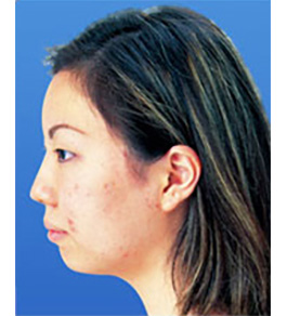 鼻の美容整形 術前