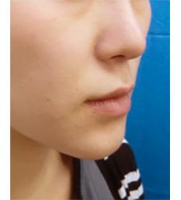 鼻の美容整形 術後