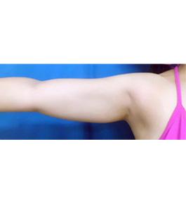 二の腕・二の腕付け根の脂肪の吸引 術前
