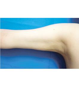 二の腕・二の腕付け根の脂肪の吸引 術後