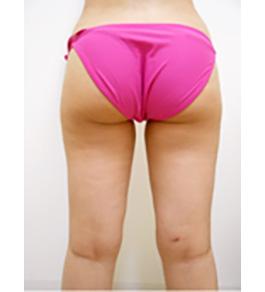 脚(足)の脂肪の吸引 術後
