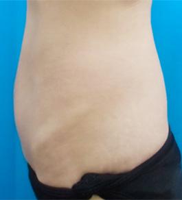 お腹の脂肪の吸引 術後