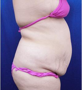 お腹の脂肪の吸引 術前