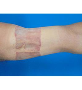 柴田智一医師による腕のタトゥー除去 術後