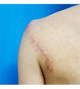 柴田智一医師による肩のタトゥー除去 術後