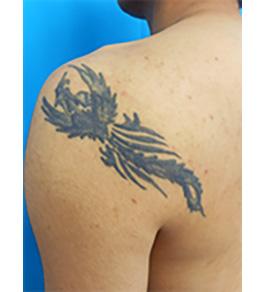 柴田智一医師による肩のタトゥー除去 術前
